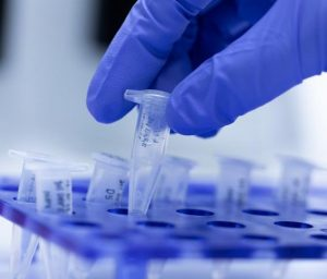 Tests PCR Covid19
